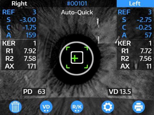 Reichert OptoCheck Plus for sale