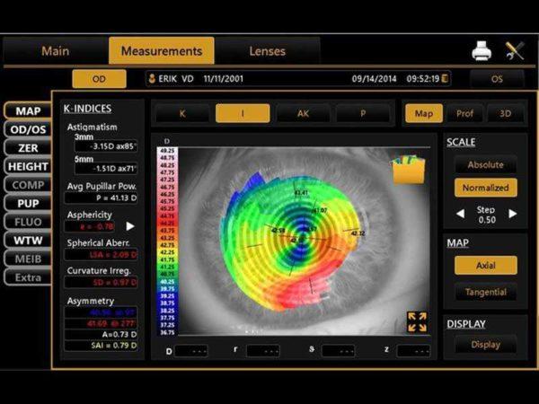 Topcon CA-800 Corneal Analyzer b