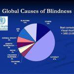 detecting glaucoma