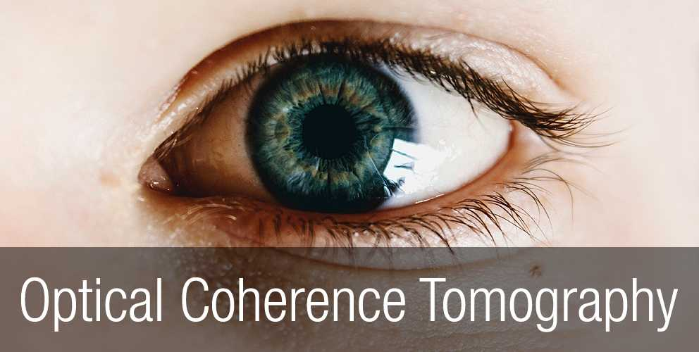 Optical-coherence-tomography-advantages
