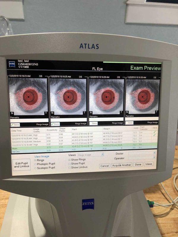 Zeiss Atlas 9000 exam