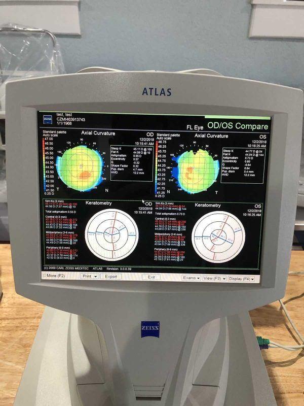 Zeiss Atlas 9000 test eye