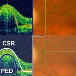 Central-Serous-Retinopathy