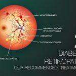 Diabetic-Retinopathy